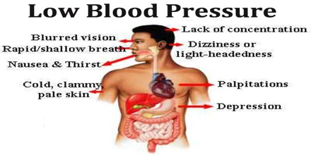 About Blood Pressure - Msrblog