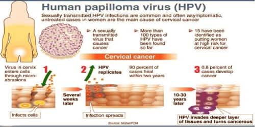 papillomavirus infection sexually transmitted